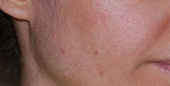 after acne treatment west vancouver