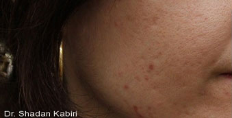 before acne treatment west vancouver
