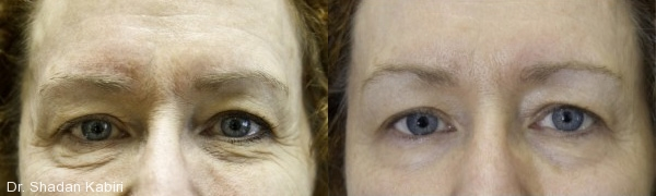 dr. shadan kabiri exilis elite before and after