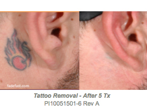 tattoo removal after 5 picoclear laser treatments