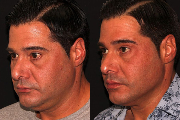 face and body skin tightening with dr. shadan kabiri