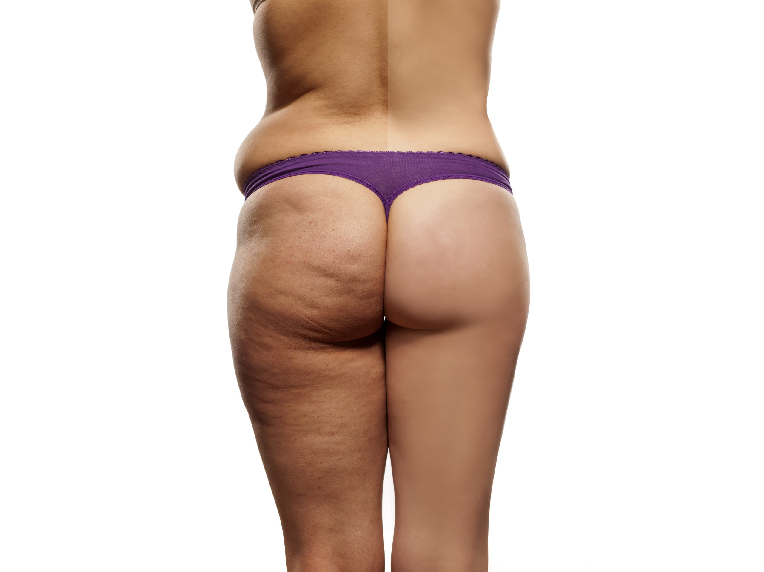 Freezing fat away sounds too good to be true, 5 ways to know if CoolSculpting is right for you!